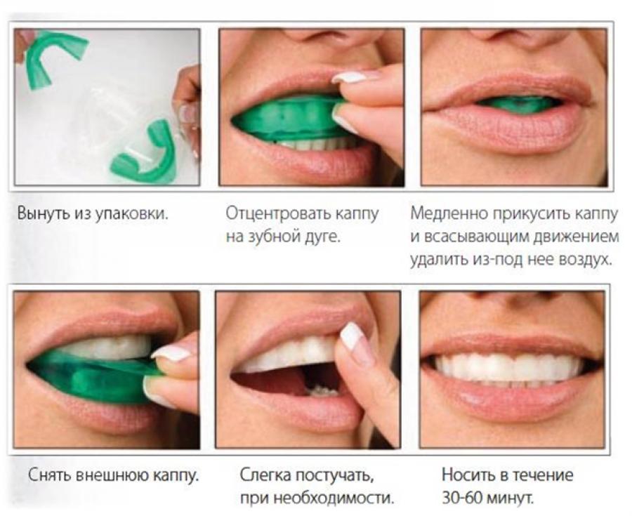 Отбеливание зубов в Химках - - Центр